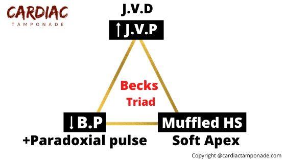 Becks triad